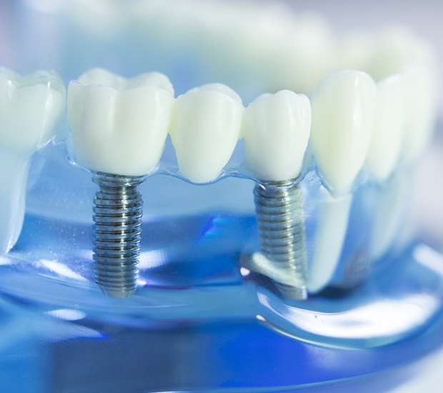Portsmouth Dental Implants